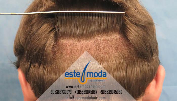 زراعة الشعر متى يطلع