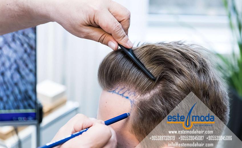 زراعة الشعر عند الدكتور خالد الغامدي