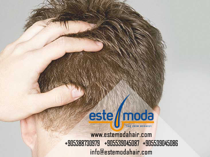 زراعة الشعر بتركيا