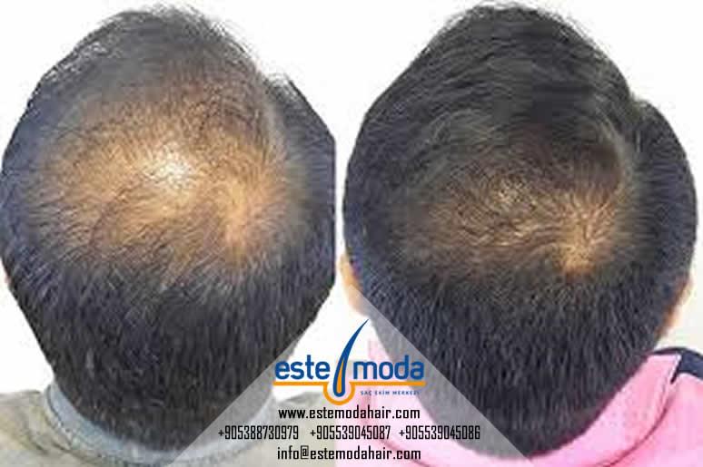 زراعة الشعر والضعف الجنسي