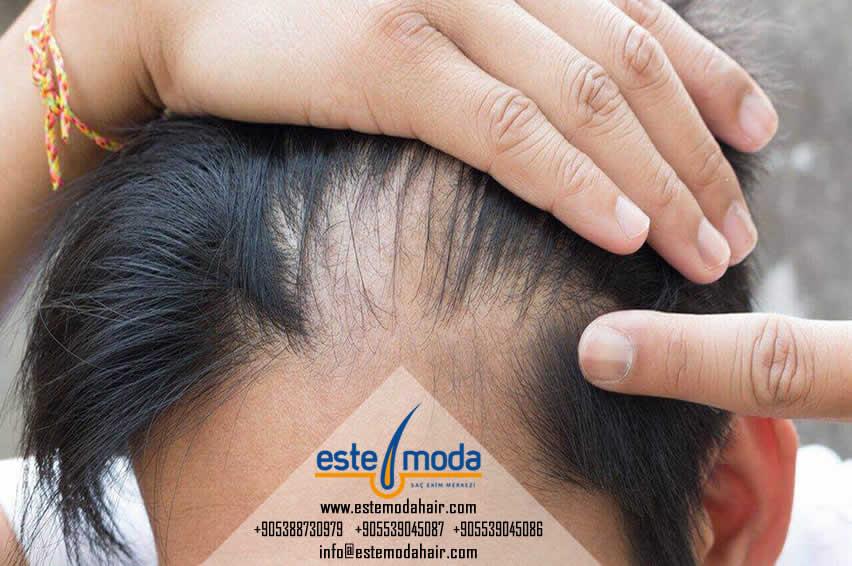 زراعة الشعر خلايا جذعية