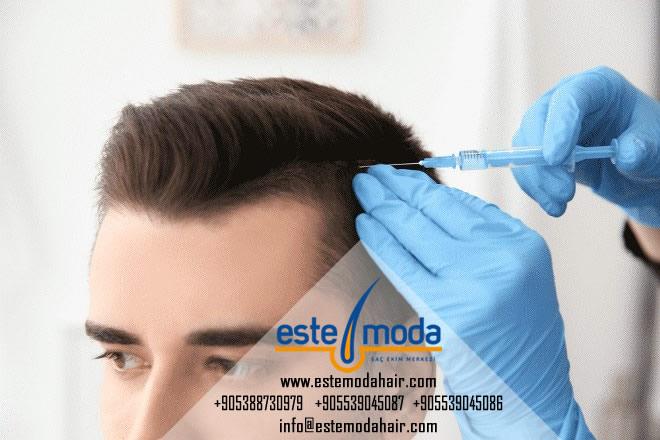 زراعة الشعر قلم تشوي