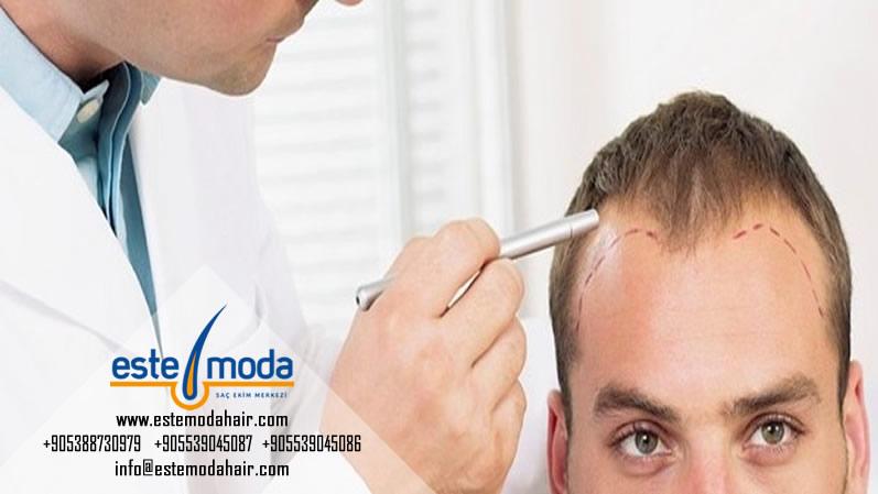 زراعة الشعر عند النساء