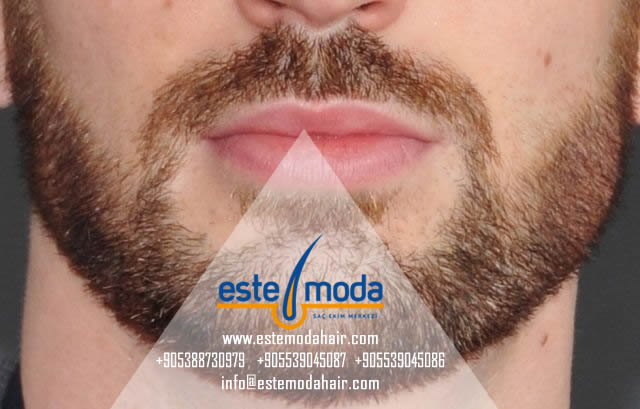 Hair Transplant Greece