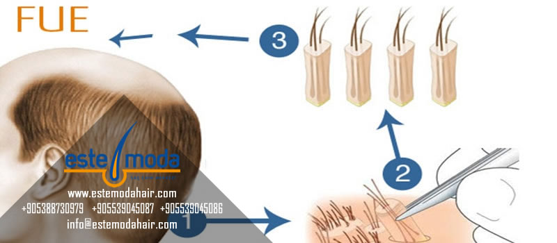 Hair Transplant Between Existing Hairs