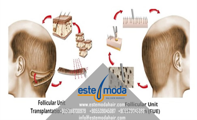 Which Hair Transplant Method Is Best