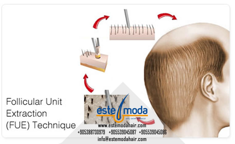 Hair Transplant Around Existing Hair