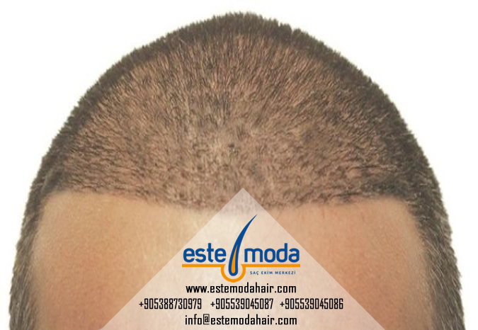 Hair Transplant See Through