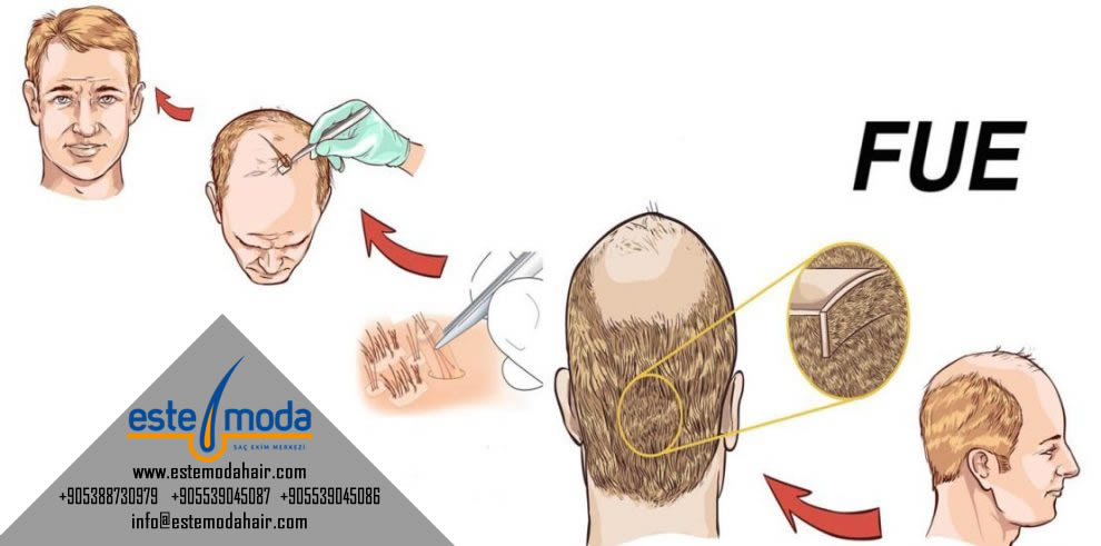 Hair Transplant 4500 Grafts