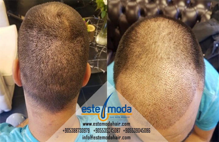 Hair Transplant 6 Month Result