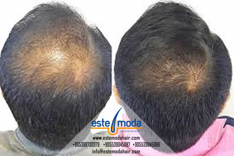 Norwood 4 Hair Transplant Cost