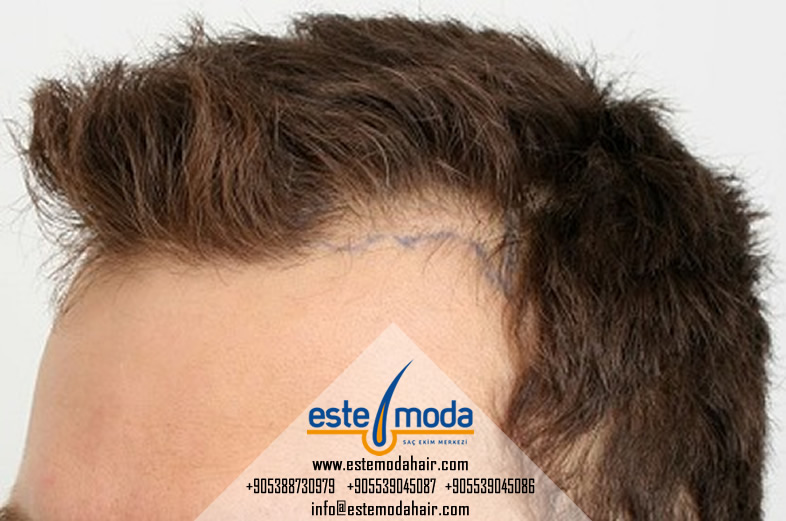 Hair Transplant Shape Up
