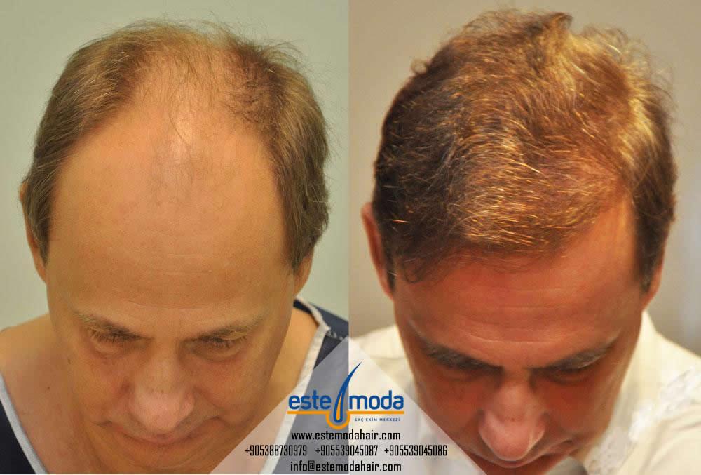 Saç Ekimi Mi Protez Mi Ekşi