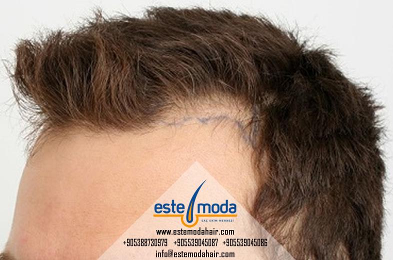 Saç Ekimi şampuanı